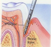 Photo Not Healthy Gum Disease Starts Tissue