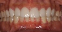 After Photo Milwaukee Restorative Dentistry