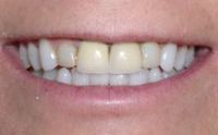New Anterior Teeth Pictures