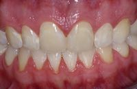 Six 6 Month Orthodontic Makeover After Photo